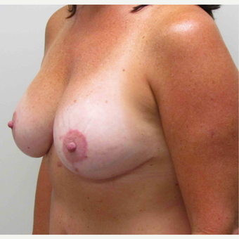 45-54 year old woman treated with Breast Lift with Implants after 3003234