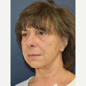 65-74 year old woman treated with Lower Face Lift before 3213987