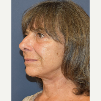65-74 year old woman treated with Lower Face Lift after 3213987