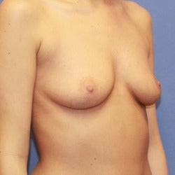 25-34 year old woman treated with Sientra Breast Implants before 1858264