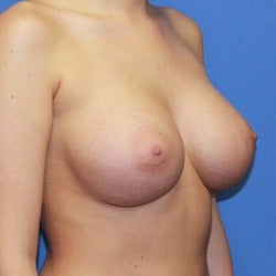 25-34 year old woman treated with Sientra Breast Implants after 1858264