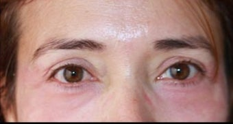 45-54 year old woman treated with Chemical Peel after 3417665