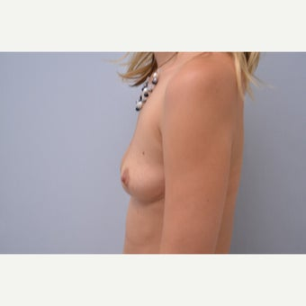 25-34 year old woman treated with Breast Implant Removal 1613228