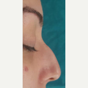 25-34 year old woman treated with Rhinoplasty before 3826177