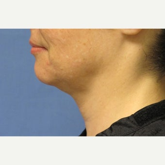 55-64 year old woman treated with Ultherapy