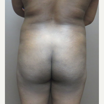 35-44 year old woman treated with Brazilian Butt Lift before 3213744