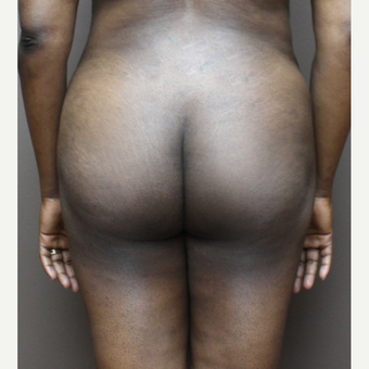 35-44 year old woman treated with Brazilian Butt Lift after 3213744