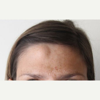 """Scarless"" Forehead Mass Removal before 1712933"