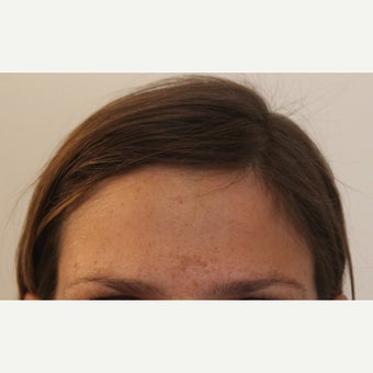 """Scarless"" Forehead Mass Removal after 1712933"