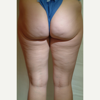 25-34 year old woman treated with Cellulaze before 3220563