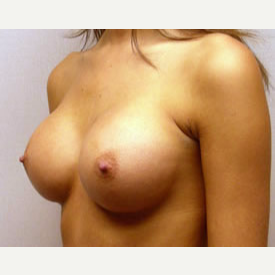 Breast Augmentation after 3680719