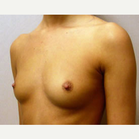 Breast Augmentation before 3680719