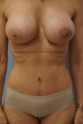 55-64 year old woman treated with Mommy Makeover after 3553989