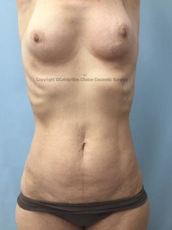 55-64 year old woman treated with Mommy Makeover before 3553989