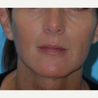 45-54 year old woman treated with Thermage, BBL and Juvederm to the lips and perioral region after 1726365