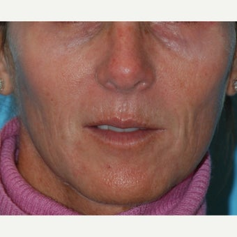 45-54 year old woman treated with Thermage, BBL and Juvederm to the lips and perioral region before 1726365