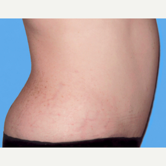 Tummy Tuck after 3810806