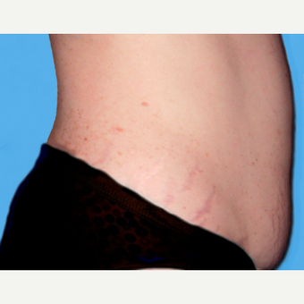 Tummy Tuck before 3810806