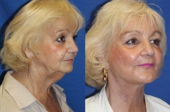 74yo, Lower Facelift, Microfat grafting, Perioral Fractional Laser after 1283354