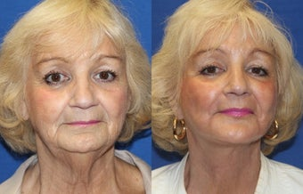 74yo, Lower Facelift, Microfat grafting, Perioral Fractional Laser before 1283354