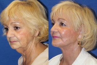 74yo, Lower Facelift, Microfat grafting, Perioral Fractional Laser 1283354