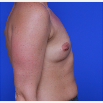 33- year old woman treated with Breast Augmentation before 3123953