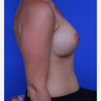 33- year old woman treated with Breast Augmentation after 3123953