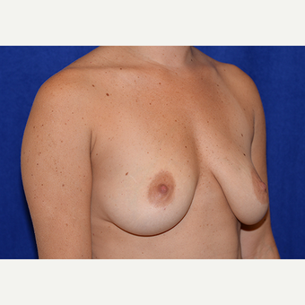 25-34 year old woman treated with Breast Lift with Implants before 3060979