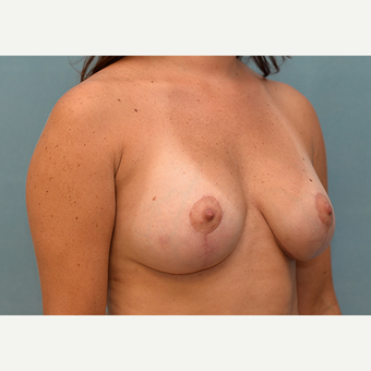 25-34 year old woman treated with Breast Lift with Implants after 3060979