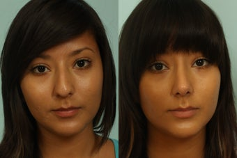 Female rhinoplasty 963026
