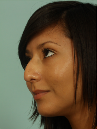 Female rhinoplasty before 963026