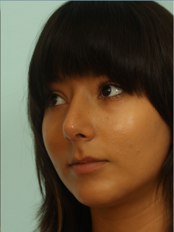 Female rhinoplasty after 963026