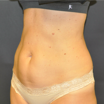 35-44 year old woman treated with SculpSure after 3623034