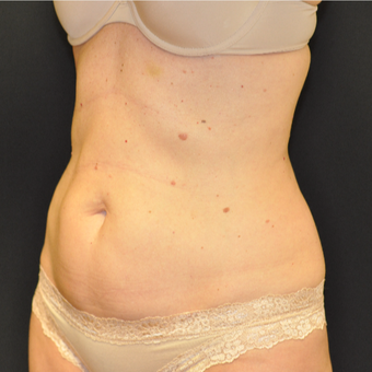 35-44 year old woman treated with SculpSure before 3623034