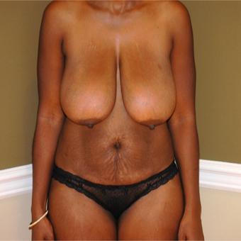 35-44 year old woman treated with Breast Lift before 3578428