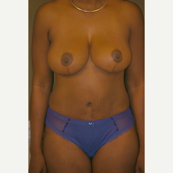35-44 year old woman treated with Breast Lift after 3578428