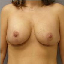 35-44 year old woman treated with Breast Lift with Implants after 3122392