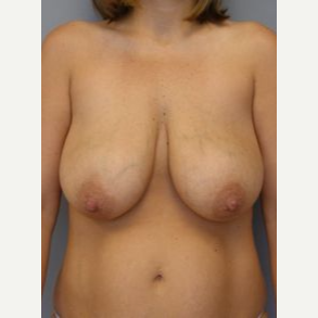 35-44 year old woman treated with Breast Lift with Implants before 3122392