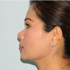 35-44 year old woman treated with Rhinoplasty before 3459159