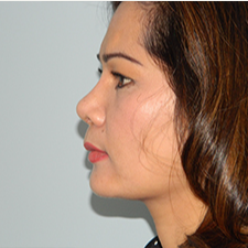 35-44 year old woman treated with Rhinoplasty after 3459159