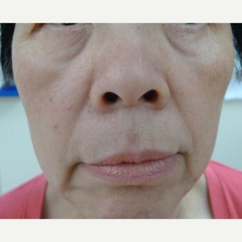 Asian skin treatments - age spots and dots, treatment with Erbium laser and Fractional laser after 1776372
