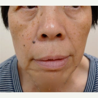Asian skin treatments - age spots and dots, treatment with Erbium laser and Fractional laser before 1776372