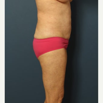 55-64 year old woman treated with Smart Lipo after 2553455
