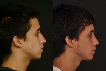 Septoplasty with nose reshaping after 1011468