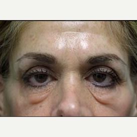 55-64 year old woman treated with Eyelid Surgery before 3482738