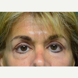 55-64 year old woman treated with Eyelid Surgery after 3482738
