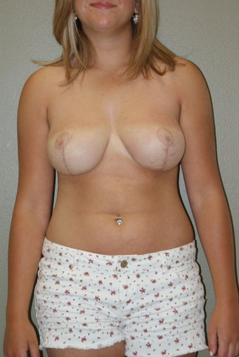 Breast Reduction after 1219825
