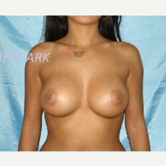 25-34 year old woman treated with Breast Augmentation after 3841737