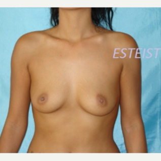 25-34 year old woman treated with Breast Augmentation before 3841737