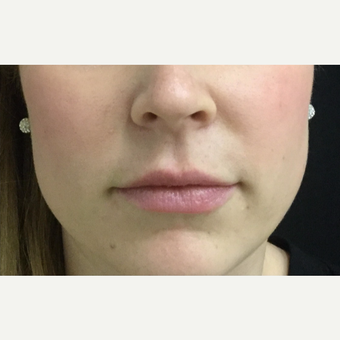 25-34 year old woman treated with Lip Augmentation after 3583520